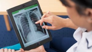 Physiotherapy for Cystic Fibrosis